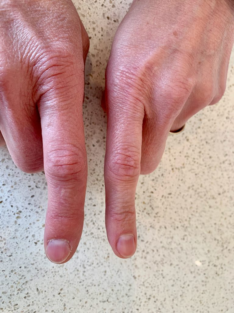 The hands of a caucasian woman with pointer fingers extended. The pointer finger on the left is visibly swollen compared to the other pointer finger.