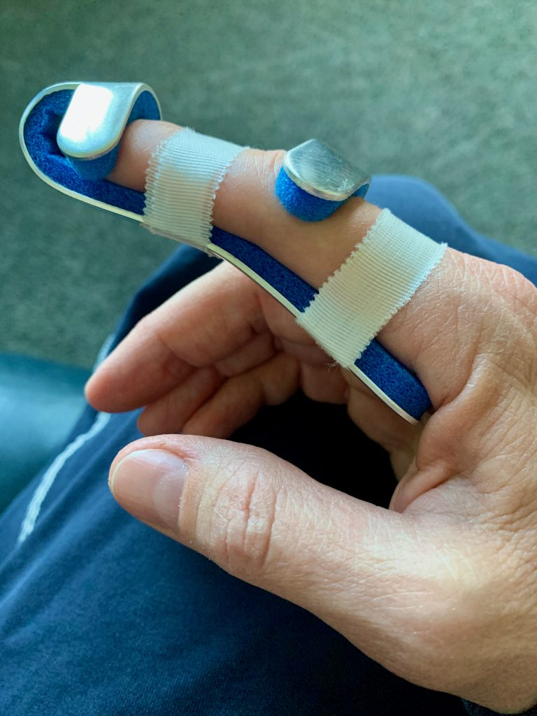 Right hand from a caucasian woman with pointer finger in a metal splint with blue foam